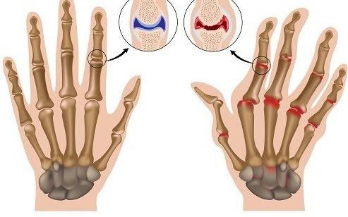 Rheumatoide Arthritis – Wie man die Symptome in den Griff bekommt