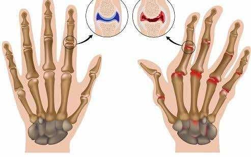 Rheumatoide Arthritis - Wie man die Symptome in den Griff bekommt