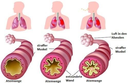 Chronisches Asthma und Allergien: Was kann ich tun?