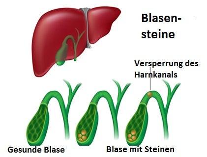 Blasensteine – Ursachen und Symptome