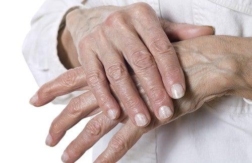 Natürliche Heilmittel für Schrunden an den Händen