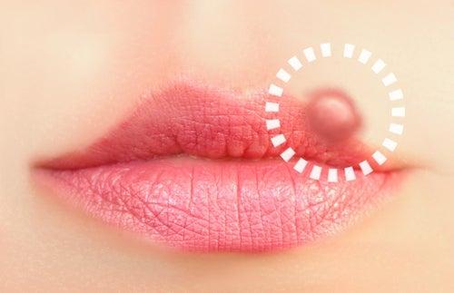 Lippenherpes – Natürliche Heilmittel