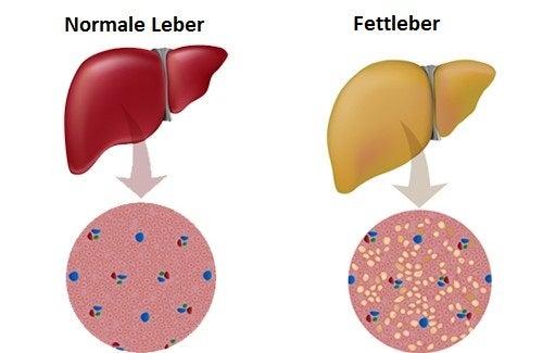 Fettleber – Was kann ich tun?