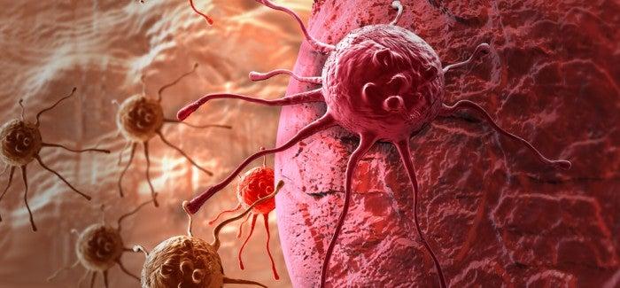 Krebs: Typische Symptome bei Frauen