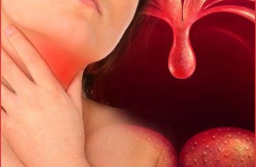 Was hilft bei Rachenentzündungen? Ernährung und Naturheilmittel