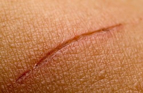 Narben – natürliche Heilmittel