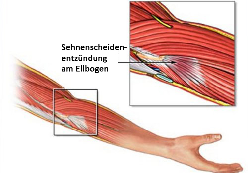 Sehnenscheidenentzündung-Ellenbogen