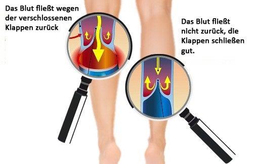 Bessere Durchblutung in Händen und Füßen