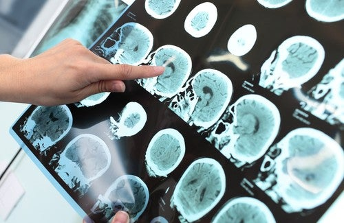 Alzheimer – Ist eine Vorsorge möglich?