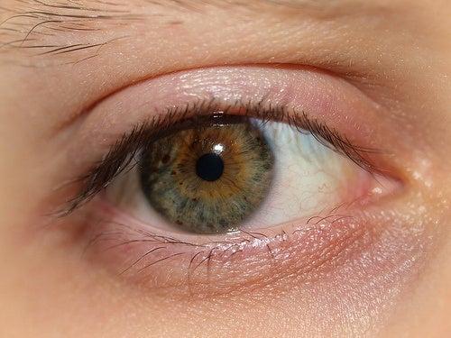 Was tun gegen geschwollene Augen am Morgen?