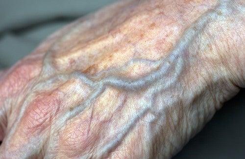 Bessere Durchblutung in den Händen