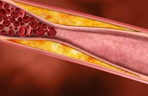 Gesunde Säfte gegen erhöhte Cholesterinwerte