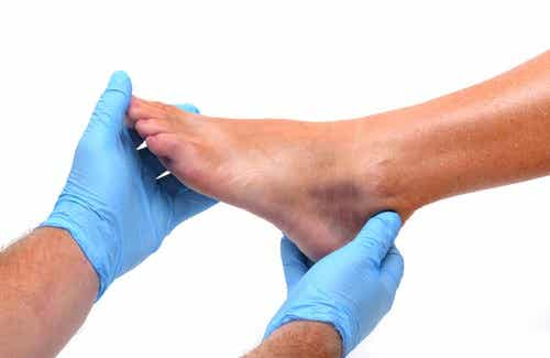 Ursachen für geschwollene Füße und Knöchel