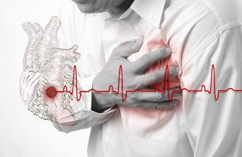 Herzinfarkt – Anzeichen und Symptome