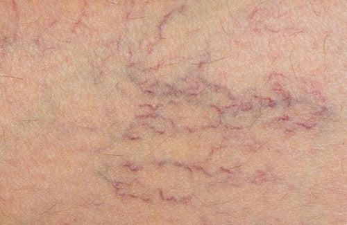 Rosskastanie – wirksam gegen Krampfadern