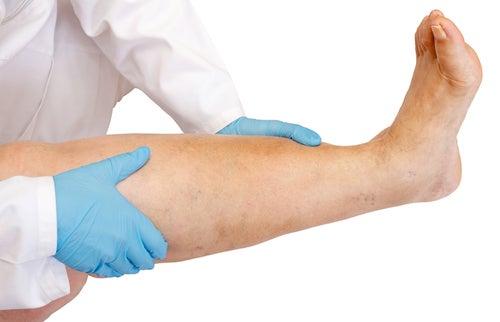 Geschwollene Beine – Ursachen und Vorbeugung