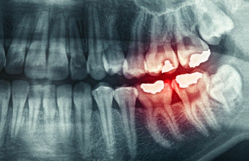 Zähneknirschen – Gründe und mögliche Folgen