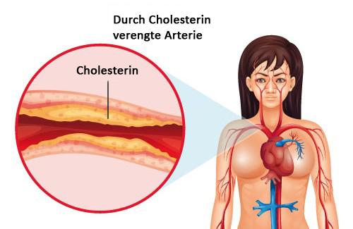Erhöhter Cholesterinspiegel – Was kann ich tun?