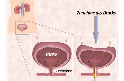 Harninkontinenz – Übungen für Frauen