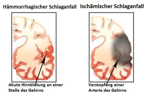Symptome eines Schlaganfalls