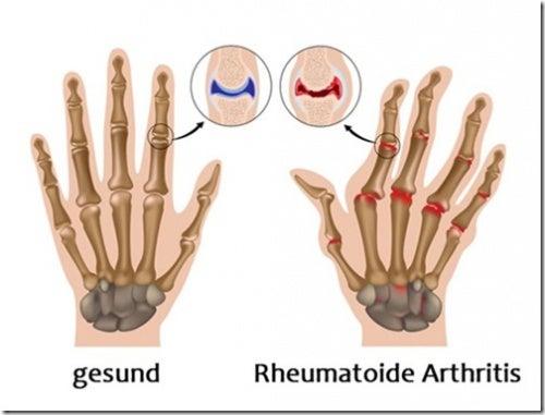 Arthritis-Hand