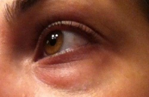 Augenringe natürlich behandeln
