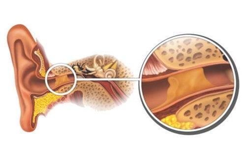 Wie entfernt man Ohrenstöpsel?