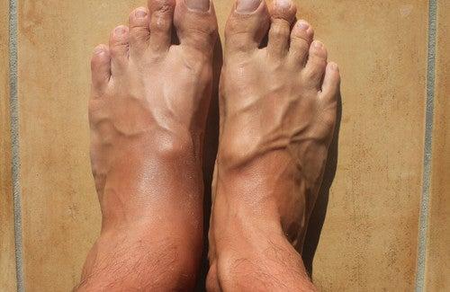 Geschwollene Knöchel und Füße: Was kann ich tun?
