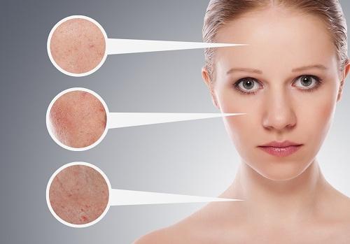 Zitronenwasser am Morgen kann dein Hautbild verbessern