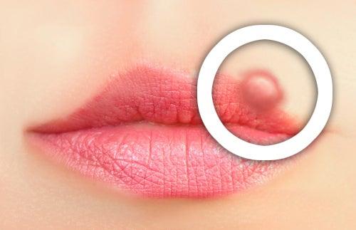 Vorsorge gegen Lippenherpes