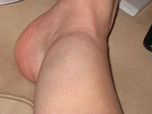 geschwollene Knöchel und Füße