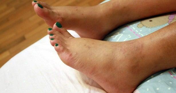Wie kann man das Anschwellen der Fußknöchel verhindern?