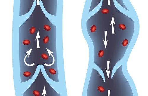 10 Heilmittel gegen Krampfadern