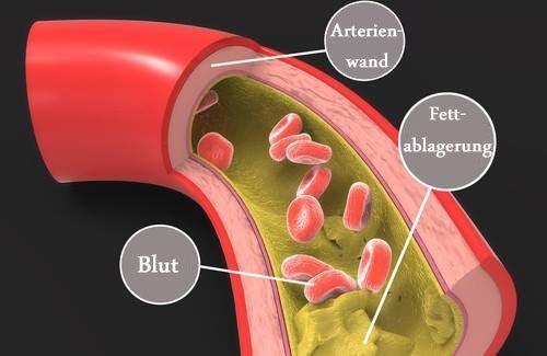 arterie1