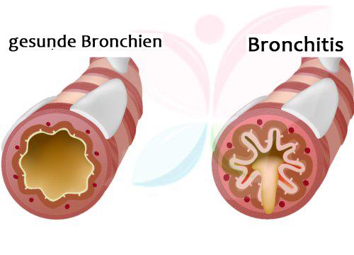 Brustschmerzen beim Husten durch Bronchitis