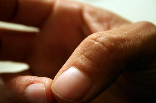 Ekzeme-Finger