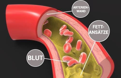 Cholesterinspiegel senken – natürliche Methoden