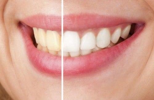 Natürlich weiße Zähne