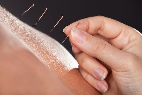 Akupunktur gegen Morbus Crohn