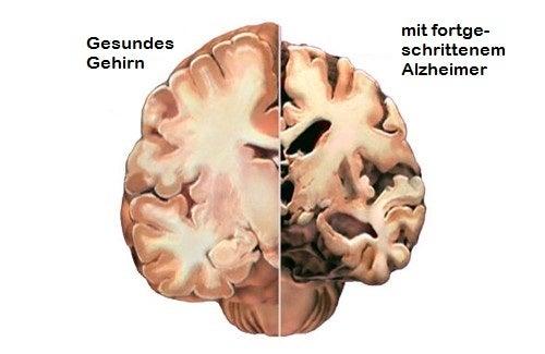 Alzheimer – Erkennen Sie die ersten Symptome