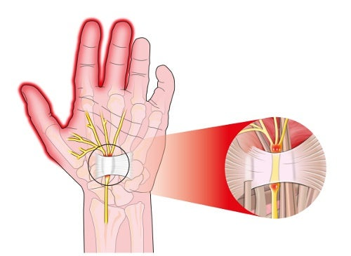 Karpaltunnelssyndrom als Ursache für Schmerzen in den Händen