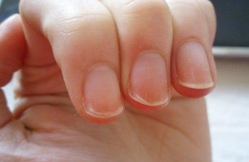 Was Fingernägel verraten