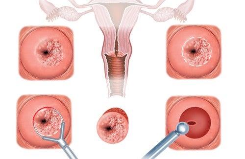 Zervixerosion – Symptome und Behandlung