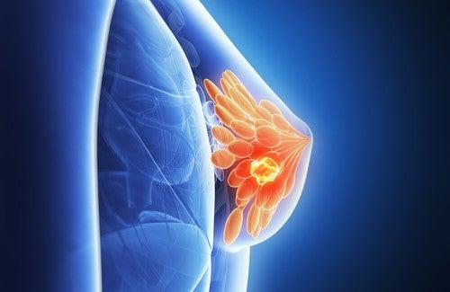 Vorhersage von Brustkrebs?