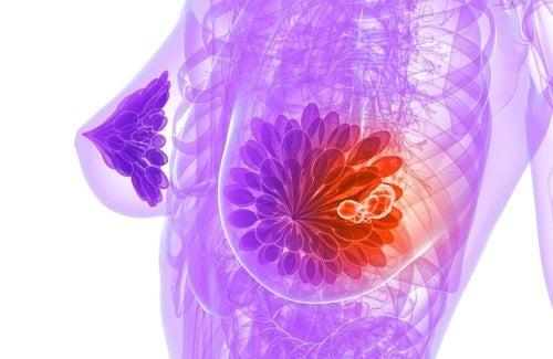 Brustkrebs frühzeitig erkennen