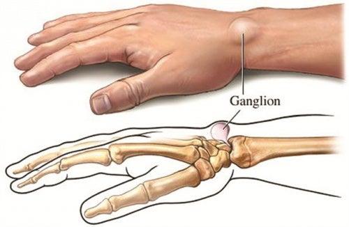 Ganglionzyste als Ursache für Schmerzen in den Händen und Gelenken