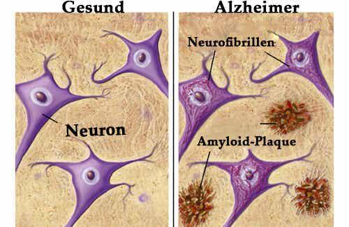 Lebensmittel die uns vor Alzheimer schützen