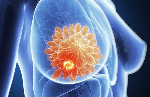 7 Gründe für das Auftreten von Brustschmerzen