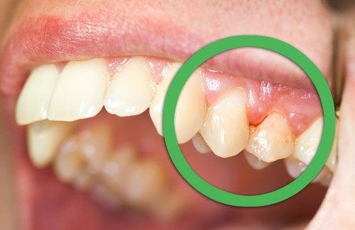 Natürliche Heilmittel gegen Zahnfleischbluten