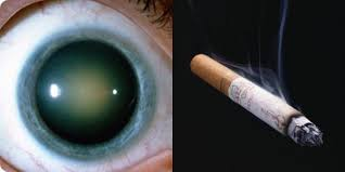 Grauer Star-Zigarette